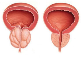 Urotrin used to prevent prostatitis